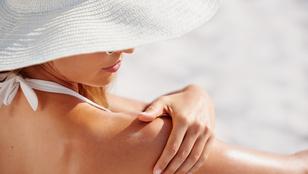 Milyen termékek kellhetnek nyáron a naptejen kívül?