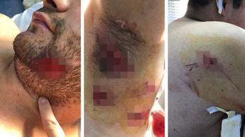 Két ember is megsérült egy medvetámadásban Tusnádfürdőn