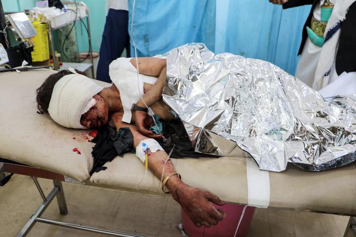 Jemeni gyermek fekszik klinikai ágyon, miután megsérült az iráni hátterű húszi lázadók által elkövetett légicsapás során. 2018.08.08.