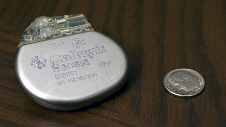 Életveszélyesen meghekkelhetők egyes pacemakerek