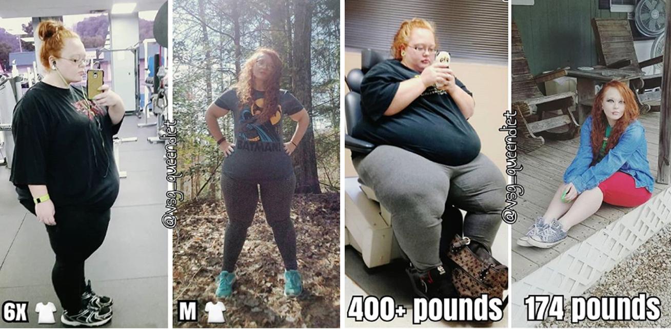 da388c3378 Majdnem 200 kiló volt, amikor fogyókúrázni kezdett: a fiatal lány két ember  súlyától szabadult meg összesen