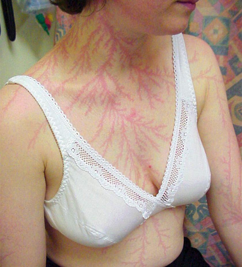 Ahogy a villám a test felszínéhez jut, a vörösvérsejteket a hajszálerekből a felhámhoz préseli.