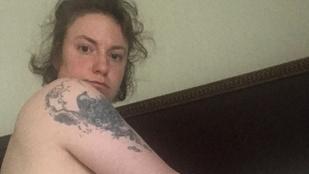 Lena Dunham meztelen fotóval emlékezett meg méheltávolító műtétjéről