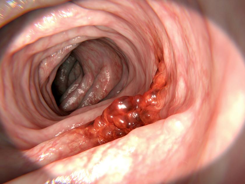 zsírégetés 2 hét alatt legfontosabb tippek a fogyás sikeréhez