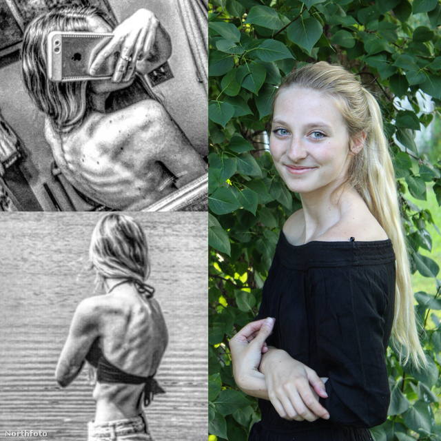 anorexiás műkorcsolyázó (3)