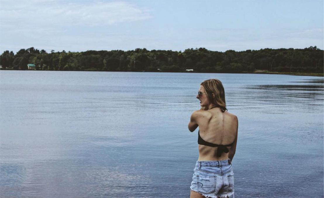 anorexiás műkorcsolyázó (6)