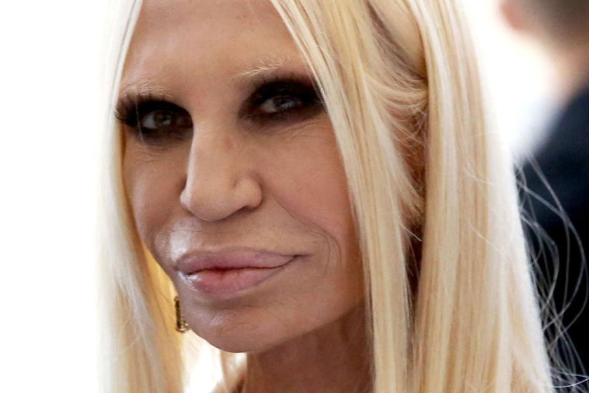 Döbbenetes fotók: Donatella Versace a plasztika előtt álomszép nő volt