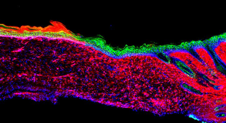 Bőrszövet regenerálás átprogramozással: a laboratóriumi egerek bőrszövetét az egyik sejttípus (vörös: mesenchymalisőssejt) átalakításával (zöld: bazális hámsejt) állították helyre egy nagy fekélyben.