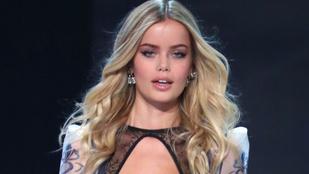 Ezzel a speciális kezeléssel égetik a zsírt egyes Victoria's Secret modellek
