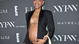Rihanna divatbemutatóján jött rá a szülés az egyik modellre