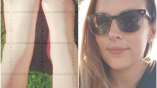 Öt lábujját veszítette el egy ausztrál nő halpedikűr után