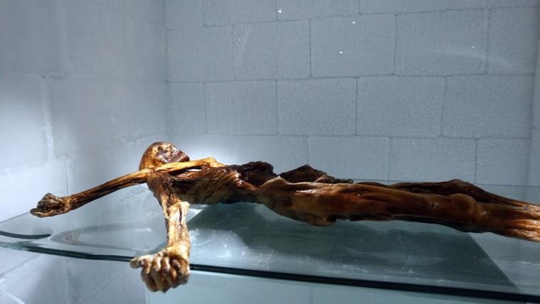 Az 5000 éves Ötzinek sok betegsége volt, de kapott gyógykezelést