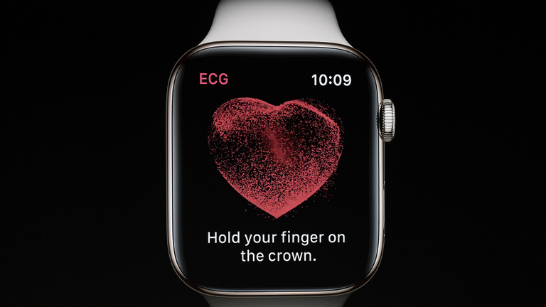 Életeket menthet az Apple Watch