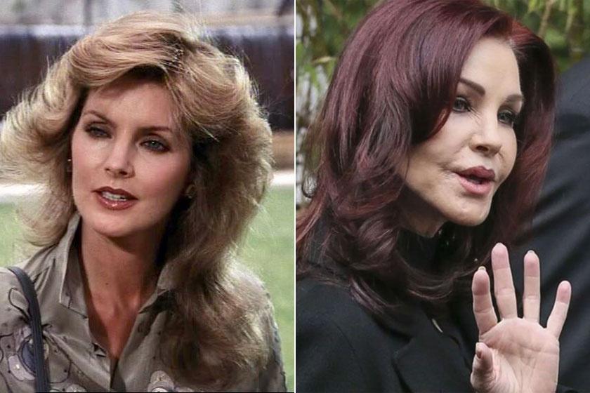 A Dallas Jenna Wade-jét alakító Priscilla Presley számtalan plasztikai műtéten átesett.