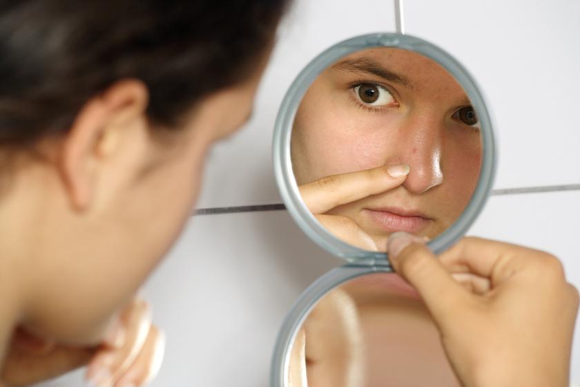Ha itt nő pattanás az arcodon, tilos kinyomni - Dr. Pimple Popper szerint akár halálos is lehet