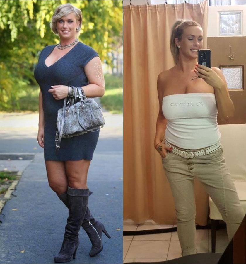 Molnár Anikó túlsúlyáért részben az inzulinrezisztencia felelt. Az elmúlt hónapokban tartja a diétát, mellőzi a fehér lisztet és a cukrot, minek köszönhetően több mint 20 kilót fogyott.