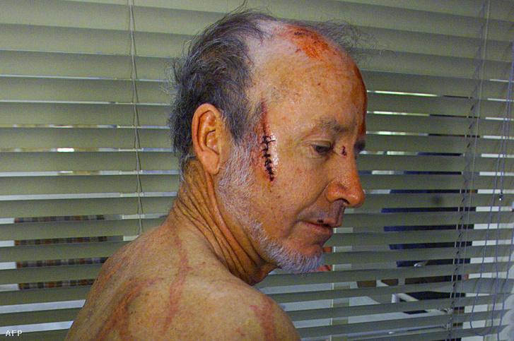 A zimbabwei Ian Kay 2000 áprilisában összeverve került kórházba