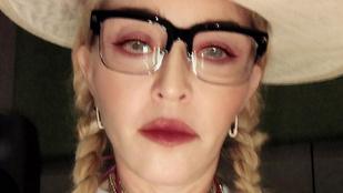 Madonna meglepően előnytelen szelfiket posztol mostanában