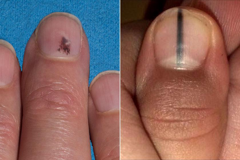 Mi a melanoma? « Melanoma blog