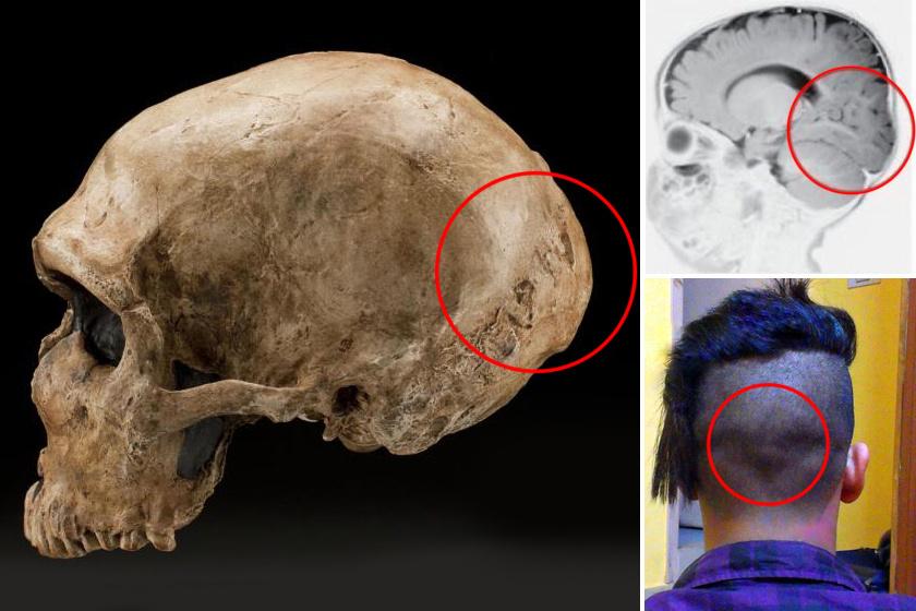 Vannak, akiknek kicsivel a tarkójuk felett van egy dudor. Ezt a dudort a neandervölgyi ősöktől származónak mondják.