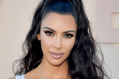 kim-kardashian-botox-ajakfeltoltes-cover