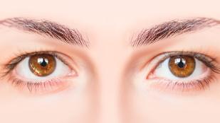 Barna szemű vagy? Ezek a betegségek veszélyeztethetnek!
