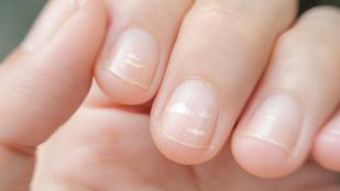 Miről árulkodnak a fehér foltok a körmödön?