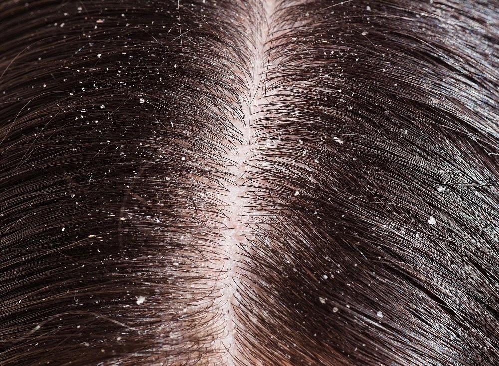 A prosztatitis hajából kieshet a haj