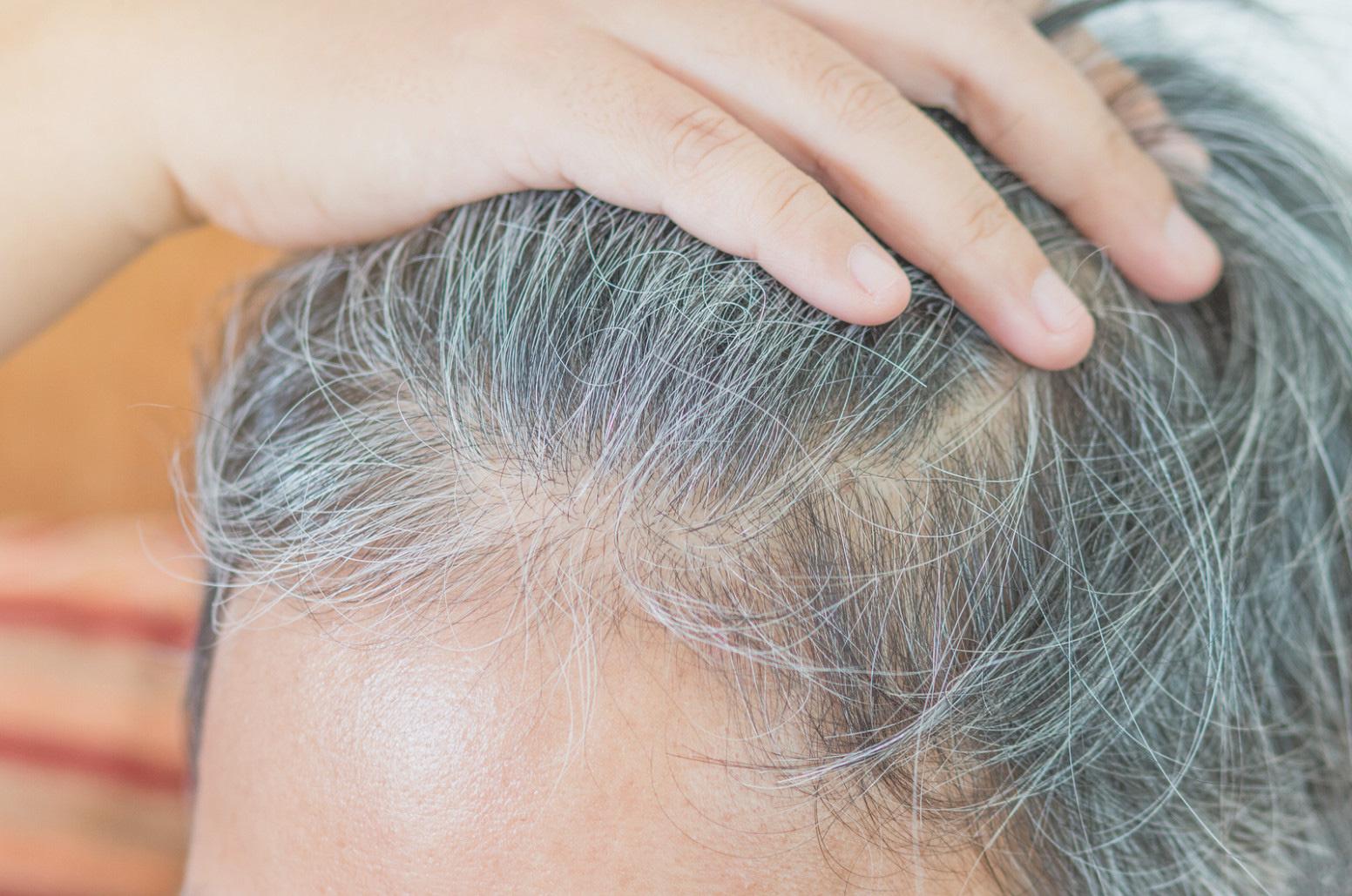 A prosztatitis hajából kieshet a haj)