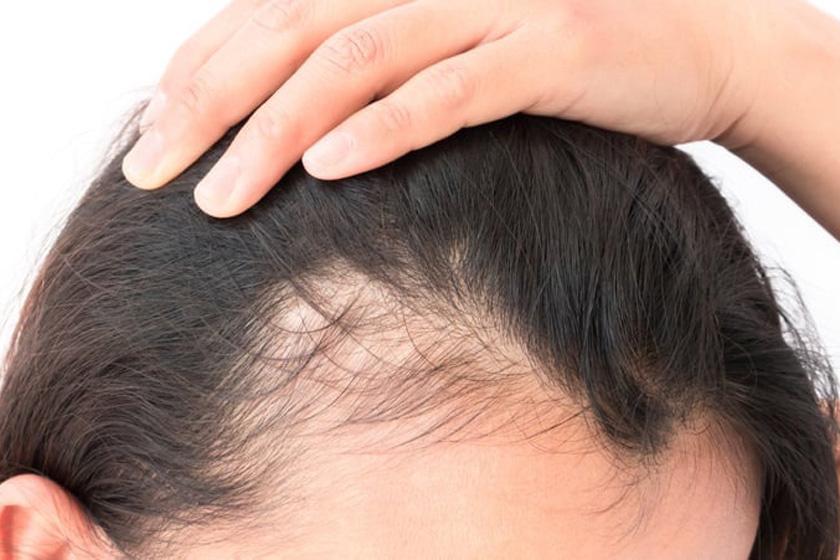 Az erős hajhullás, hajritkulás, esetleg a kopaszodás pajzsmirigy-alulműködésre utalhat a legtöbbször, de gyakran cukorbetegséget is jelezhet.