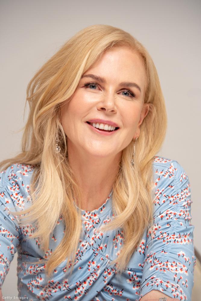 Önnek szarkalábas lesz a szeme sarka, ha mosolyog? Nicole Kidmannek is!..