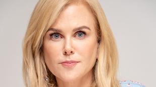Gyönyörködjön Nicole Kidman minden helyzetben ránctalan arcában!