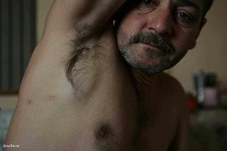 Tibor testéből egy golyót operáltak ki, a másik keresztülment az oldalán