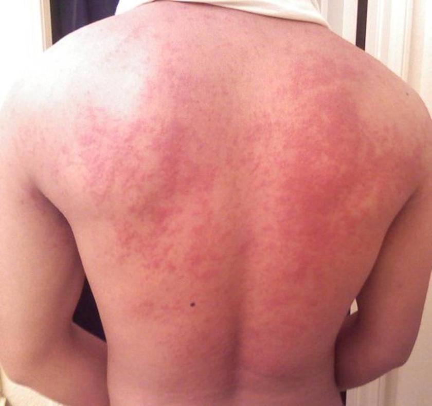 A háton és az egész testen jelentkező csalánkiütések jelezhetik az ételallergiát. A tünet társulhat viszketéssel, akár a száj környékén is, valamint nyelési zavarokkal, hasi panaszokkal.