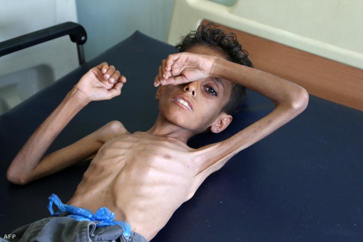 A 10 éves Ghazi Ali bin Ali az éhezés egyik gyermekáldozata
