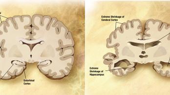 Mesterséges intelligencia segít az Alzheimer korai felismerésében