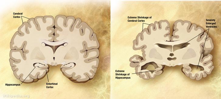 Egy egészséges (balra) és egy Alzheimer-kóros beteg (jobbra) agyának összehasonlítása