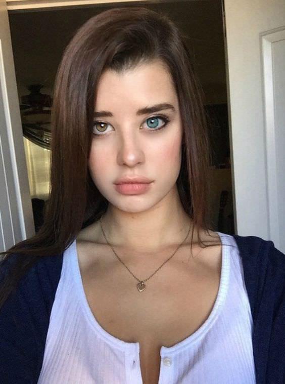 A heterokrómia eltérő szemszínben nyilvánul meg, és káprázatosan különlegessé teszi a tekintetet. Ennek a lánynak is gyönyörűek a felemás szemei.