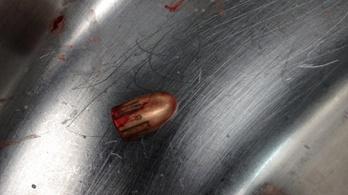 Amerikai orvosok tweetelnek a fegyverek véres valóságáról