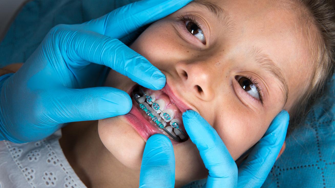 Fogszabályzás gyerekkorban: mit érdemes tudni az orvos szerint?