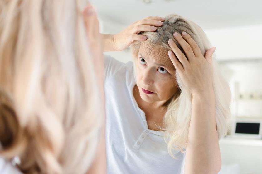 Lenőtt vagy ősz hajtövek? 8 gyors frizura, amivel könnyedén elrejtheted őket