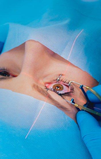 Ezért retteg feleslegesen a lézeres szemműtéttől