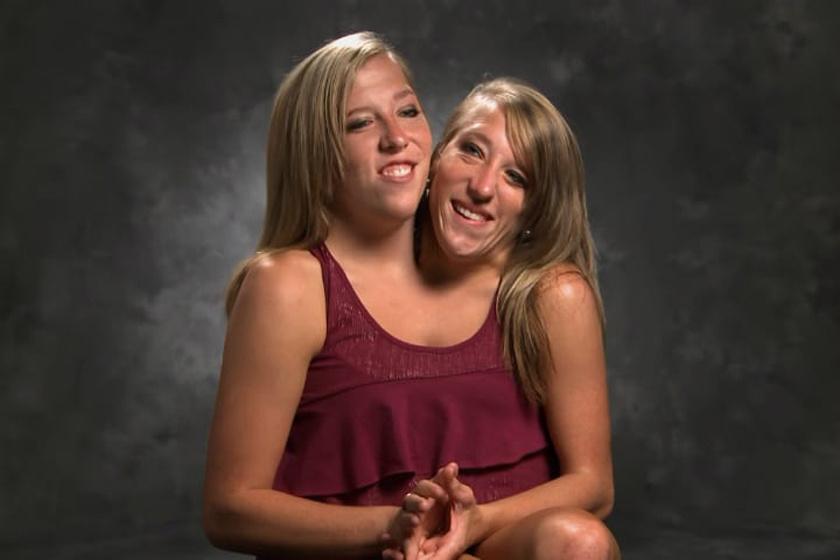 28 évesek és boldogok a kétfejű sziámi ikrek: lemondtak róluk, mégis egészségesek
