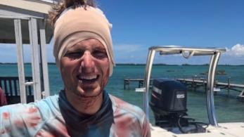 Megharapta a fejét egy cápa a Bahamákon, de túlélte