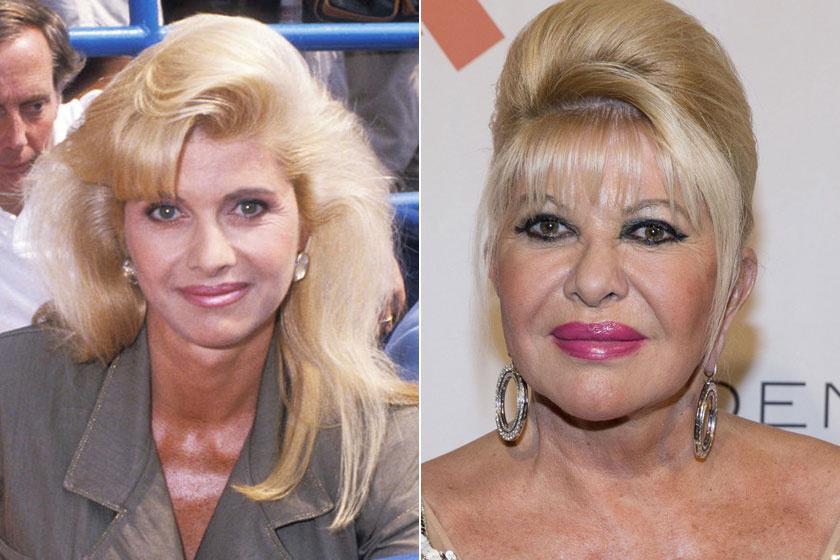 Ivana Trump nagyon bájos nő volt a plasztikai műtétek előtt, nem értjük, miért kellett kés alá feküdnie.