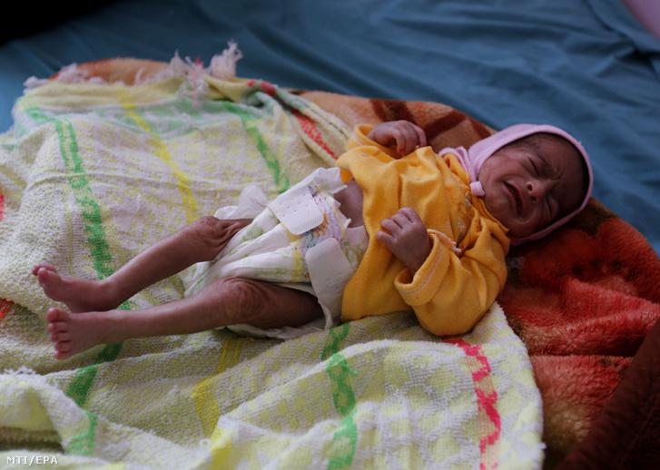 Alultáplált jemeni csecsemő egy táplálkozási rehabilitációs osztályon a jemeni fővárosban