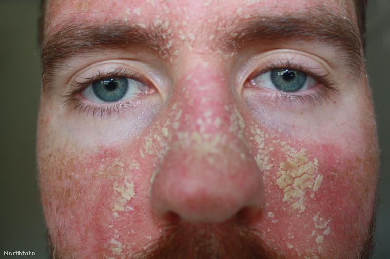 A bőr ilyen kipirosodását rosaceának hívják.