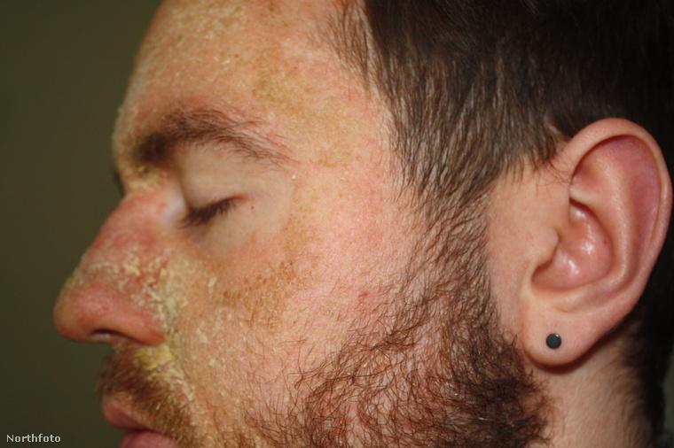 13-tól 27 éves koráig küzdött a fiatalember az arcbőrével, azaz 14 évig tartott a kálvária.