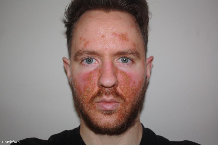 Amikor nyilvánvalóvá vált, hogy a bőrgyógyász által felírt szerek (önmagukban) nem hatásosak, Hess eldöntötte, hogy életmódot vált.