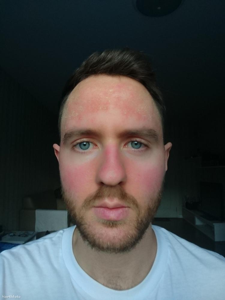 Hess problematikus arcbőrét egyrészt a génjeinek köszönheti, amiket az orvosok nem tudnak ugye megváltoztatni
